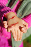 Hand of child with bloody wound stock image