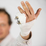 Hand with complex fracture. Male hand with complex fracture wrapped in bandages and corrected with pins Stock Photo