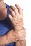 Hand Deformed From Rheumatoid Arthritis Stock Image