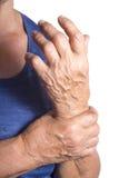 Hand Deformed From Rheumatoid Arthritis Stock Image