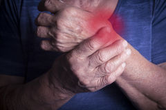 Hand Deformed From Rheumatoid Arthritis. Studio shot. Pain condition. In red royalty free stock photography