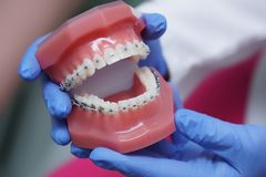 In hand on dentist orthodontics braces. In clinic royalty free stock image