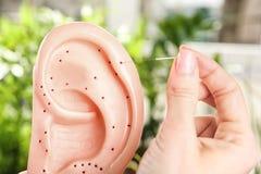 Hand der Frau Nadel für Akupunktur haftend Lizenzfreie Stockbilder