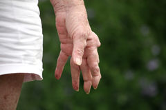 Hand der rheumatischen Arthritis Stockfotos