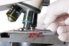 Hand die bloedsteekproef plaatst onder microscoop Royalty-vrije Stock Foto's