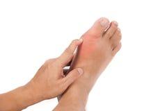 Hand, die geschwollenen Gicht entflammten Fuß hält Lizenzfreies Stockbild
