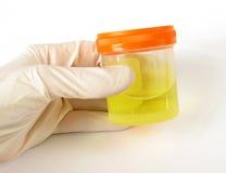 Hand die medisch specimen houdt Royalty-vrije Stock Foto's