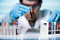 Hand of doctor holding blood sample in tube test for analysis in Stock Photos