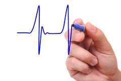 Hand drawing ecg graph stock images