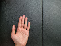 Hand eczema on black leather with Copy space. Hand eczema on black leather background with Copy space Stock Photos
