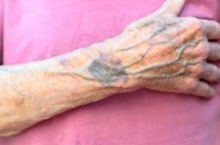 Hand eines alten Mannes, der seinen Kasten umklammert Lizenzfreies Stockbild