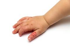 Hand eines Kindes mit atopic Ekzem Stockfotos
