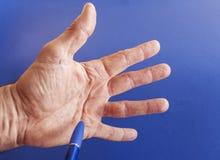 Hand eines Mannes mit Dupuytren-Kontraktur auf Blau Stockfotografie