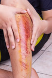 Hand embracing injured knee with painful abrasion from fall. Hand embracing injured knee with painful abrasion scratches from fall Stock Photo