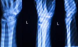 Hand finger thumb hospital xray scan Royalty Free Stock Photography