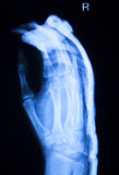 Hand finger thumb hospital xray scan Royalty Free Stock Photo