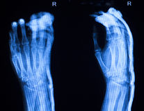 Hand finger thumb hospital xray scan Royalty Free Stock Image