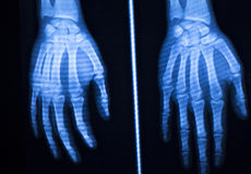 Hand finger thumb hospital xray scan Royalty Free Stock Images
