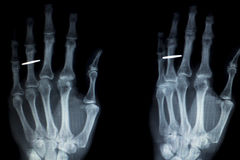 Hand fingers implant Xray scan Royalty Free Stock Photos