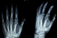 Hand fingers inury Xray scan Royalty Free Stock Image