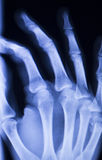 Hand fingers thumb wrist xray scan Royalty Free Stock Photography