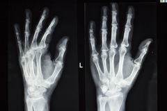 Hand fingers xray test scan Royalty Free Stock Images