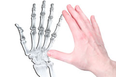 Hand in flash and bone Stock Photography