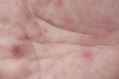 Hand, foot and mouth disease Stock Images