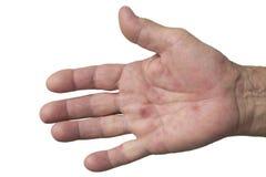 Hand-, fot- och munsjukdom Fotografering för Bildbyråer
