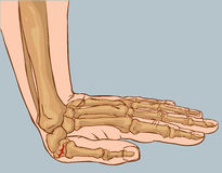 Hand fracture Stock Photos