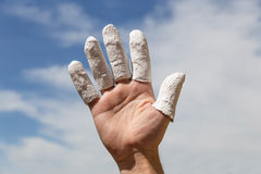 Hand in front of blue sky, injured finger Royalty Free Stock Photos