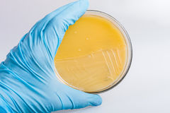 Hand in glove holding the petri dish with bacteria, work in biochemical laboratory. Stock Image