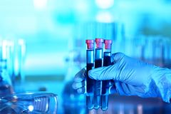Hand in glove holding test tubes. On blurred background Stock Photos
