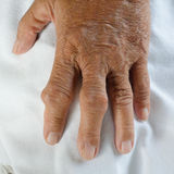 Hand of gout patient Royalty Free Stock Images