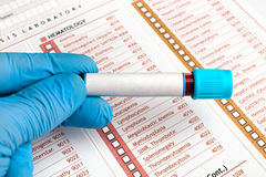 Hand holding Blood tests over medical report Royalty Free Stock Image