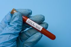 Hand Holding a DNA Test in a test tube on a Blue Background. The concept of Medicine and Analysis royalty free stock photography