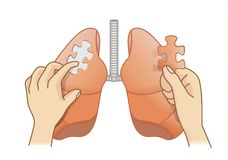 Hand holding last piece of jigsaw puzzle for Lung treatment. Hand holding last piece of jigsaw puzzle for add on the lung. Medical concept illustration about Stock Images
