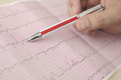 Hand holding pen indicates  beats in ECG. Photo Royalty Free Stock Photography