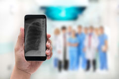 Hand holding a phone with chest x-ray image and Doctor leading a Royalty Free Stock Photography