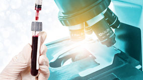 Hand holding sample blood for test with Laboratory Microscope. Scientific and healthcare research background Stock Photos