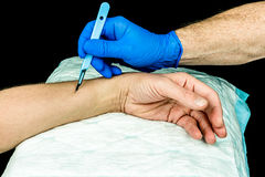 Hand holding scalpel to cut on arm. Royalty Free Stock Photo