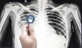 Hand holding stethoscope and pointing patient chest x-ray film before treatment stock photo
