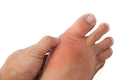 Hand holding Swollen Gout Inflamed Foot. Hand holding a painful and swollen gout inflamed foot royalty free stock images