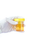 Hand holding a urine sample Royalty Free Stock Images