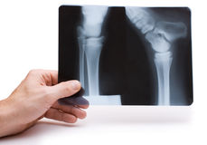 Hand holds radiograph Royalty Free Stock Images