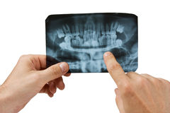 Hand holds radiograph Stock Images