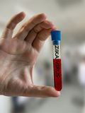 Hand holds test tube with blood sample infected with ZIKA virus Stock Images