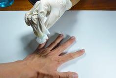 Hand i medicinsk rubber handskelokalvård som ska såras Arkivfoto