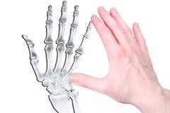 Hand im Blinken und im Knochen Stockfotografie