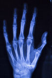 Hand injury fingers xray scan Stock Image